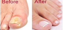 Small2_clear_nails_plus_reviews